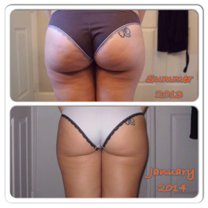Liz and her before and after cellulite photos